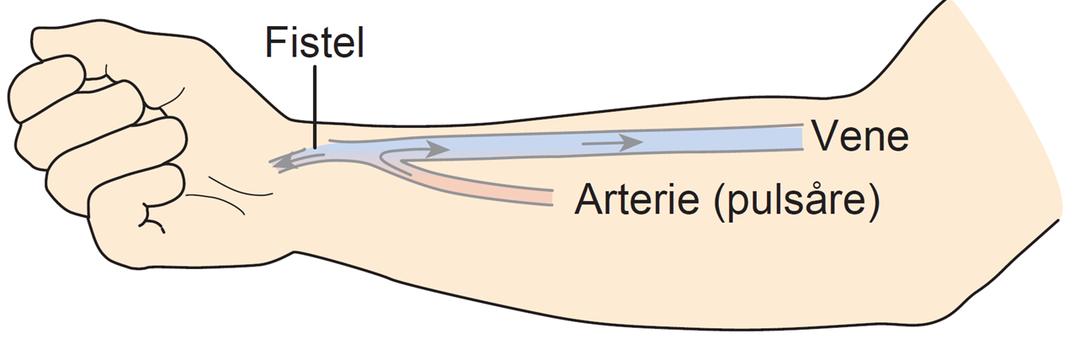 Illustration af en AV-fistel