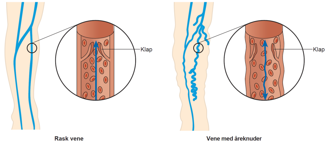 Illustration af en rask vene og en vene med åreknuder