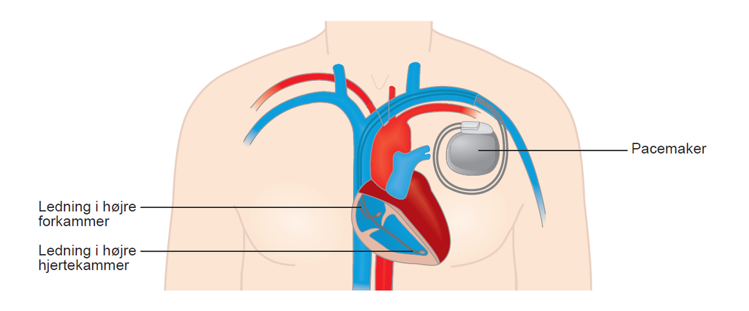 Pacemaker med de to ledninger i højre forkammer og højre hjertekammer.