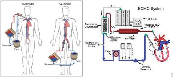 Illustrerer hvordan en ECMO behandling fungere