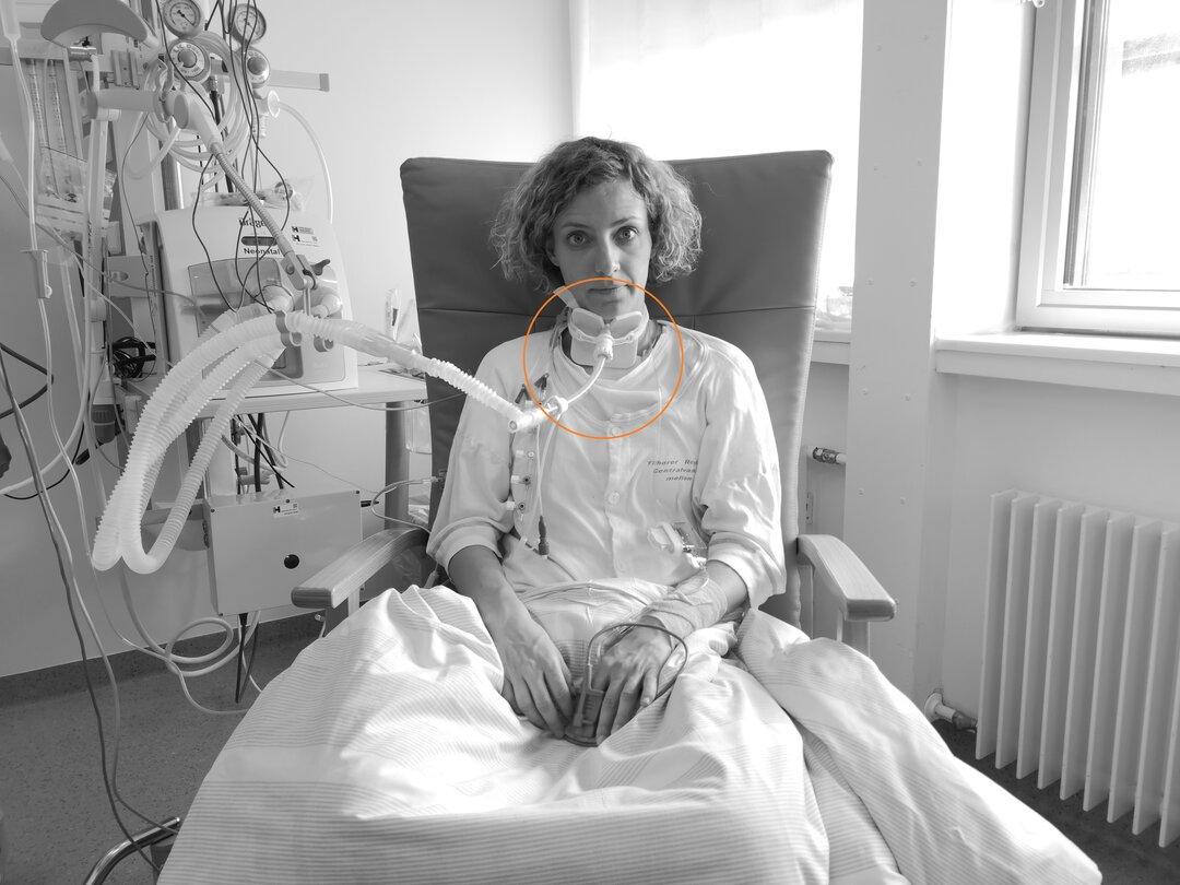 På billedet ses en patient med en trakeotomi.