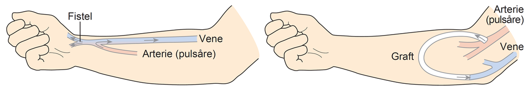 Illustration i to billeder. Første billede af en fistel i armen, andet billede af en graft i armen