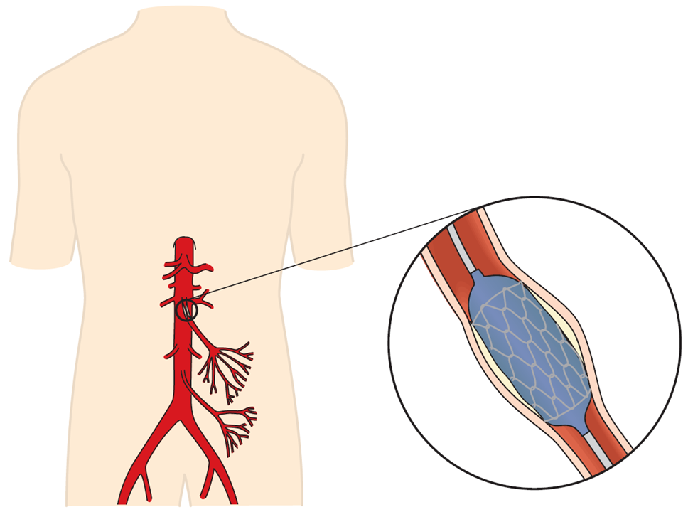 Tegning, der illustrerer en ballonudvidelse af tarmens pulsårer