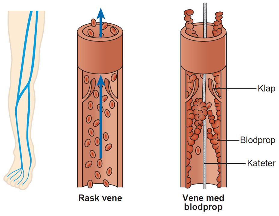 Illustration af en rask vene og en vene med blodprop
