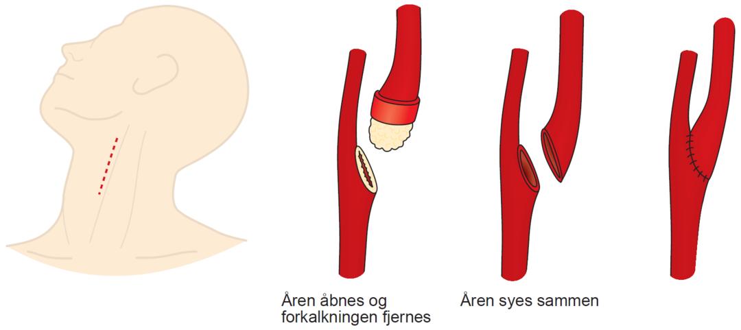 Illustration af operation for forkalkning i halspulsåren.  Illustrationen viser, der bliver foretaget et snit i halsen, hvorefter åren åbnes og forkalkningen fjernes. Efter det syes åren.