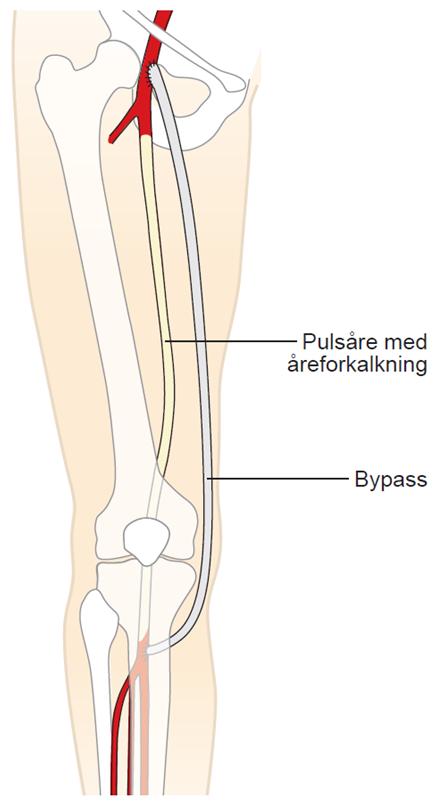 Illustration af bypassoperation i benet