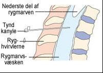 Tegning af hvordan man foretager en lumbalpunktur.