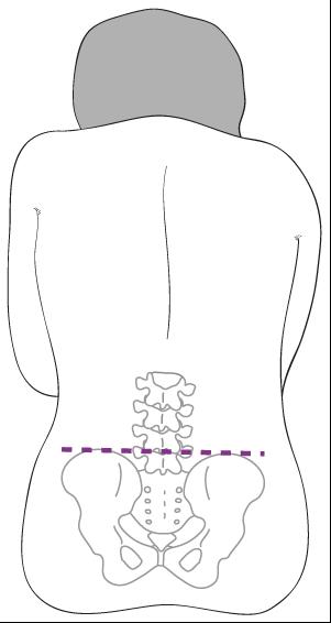 Den siddende stilling, som lumbalpunktur kan foretages i.