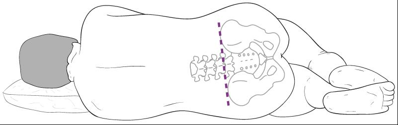 Den liggende stilling, som lumbalpunktur kan foretages i.
