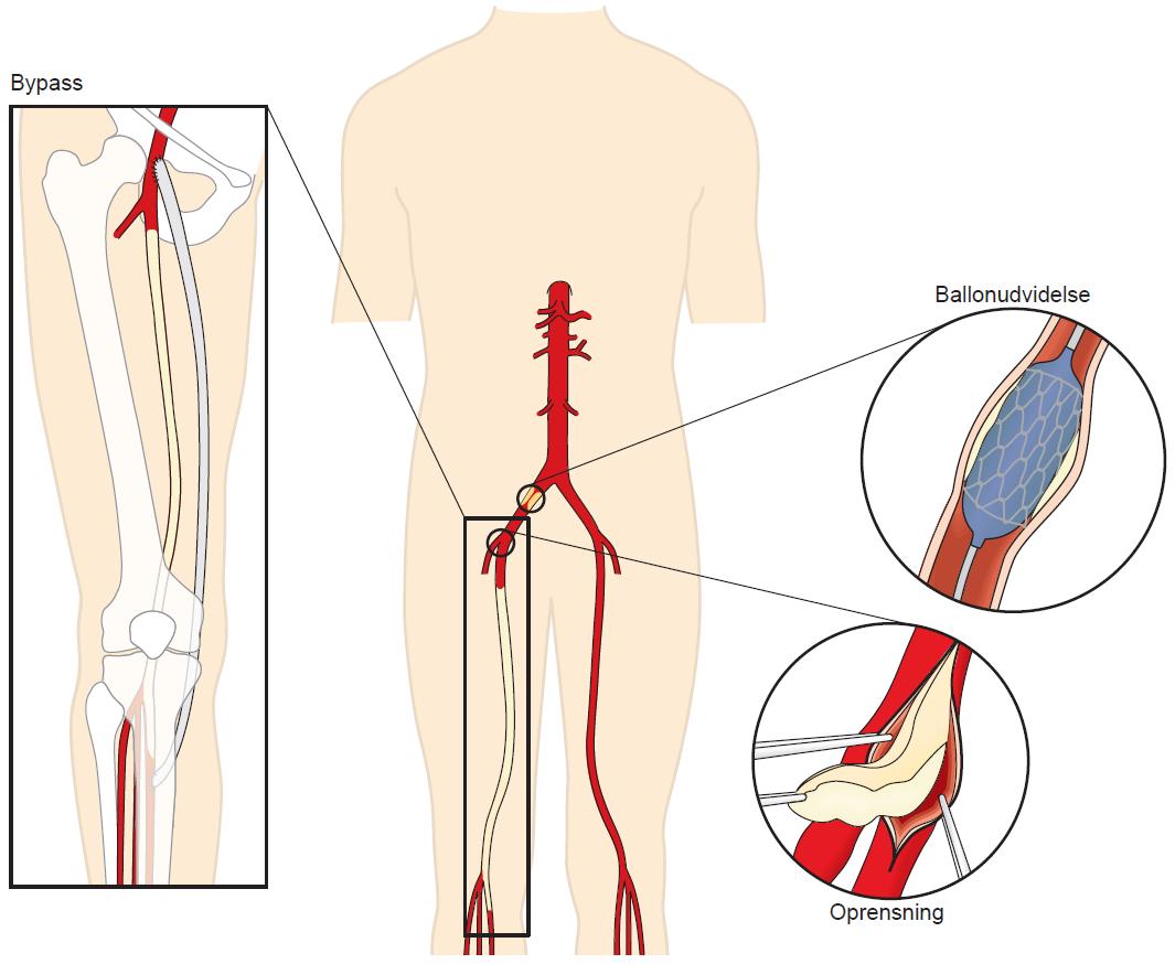 Illustration af ballonudvidelse af bækkenpulsåren, oprensning af pulsåren samt en bypass.