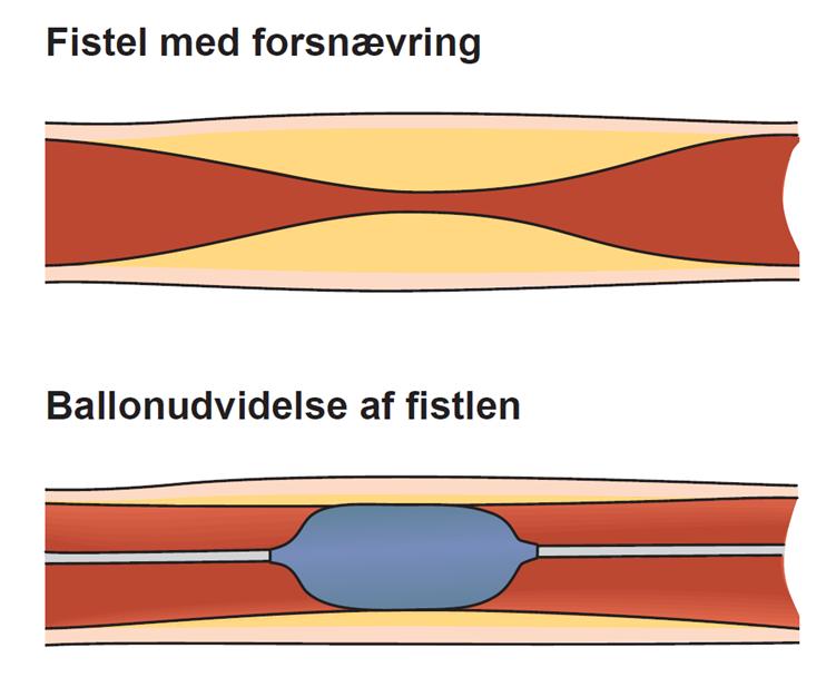 Illustration af en fistel med forsnævring og en ballonudvidelse af fistlen