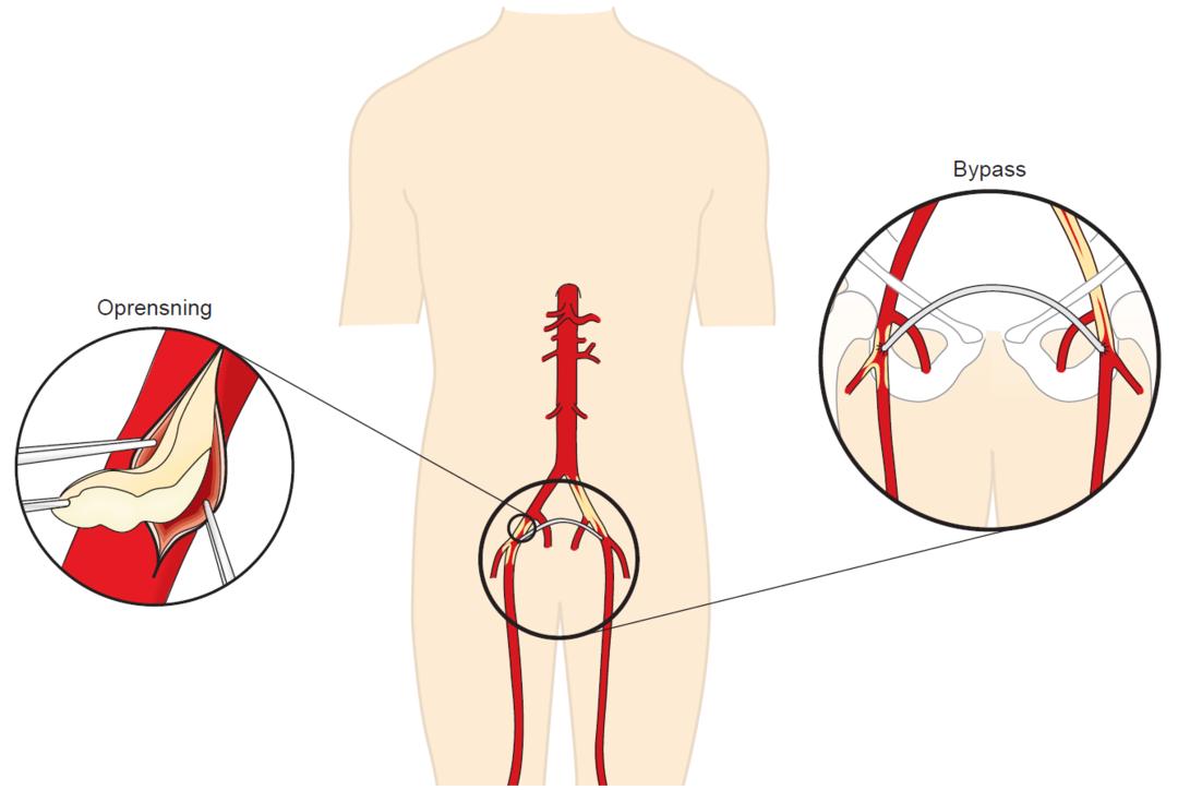 Illustration af oprensning og bypass i lyskepulsåren