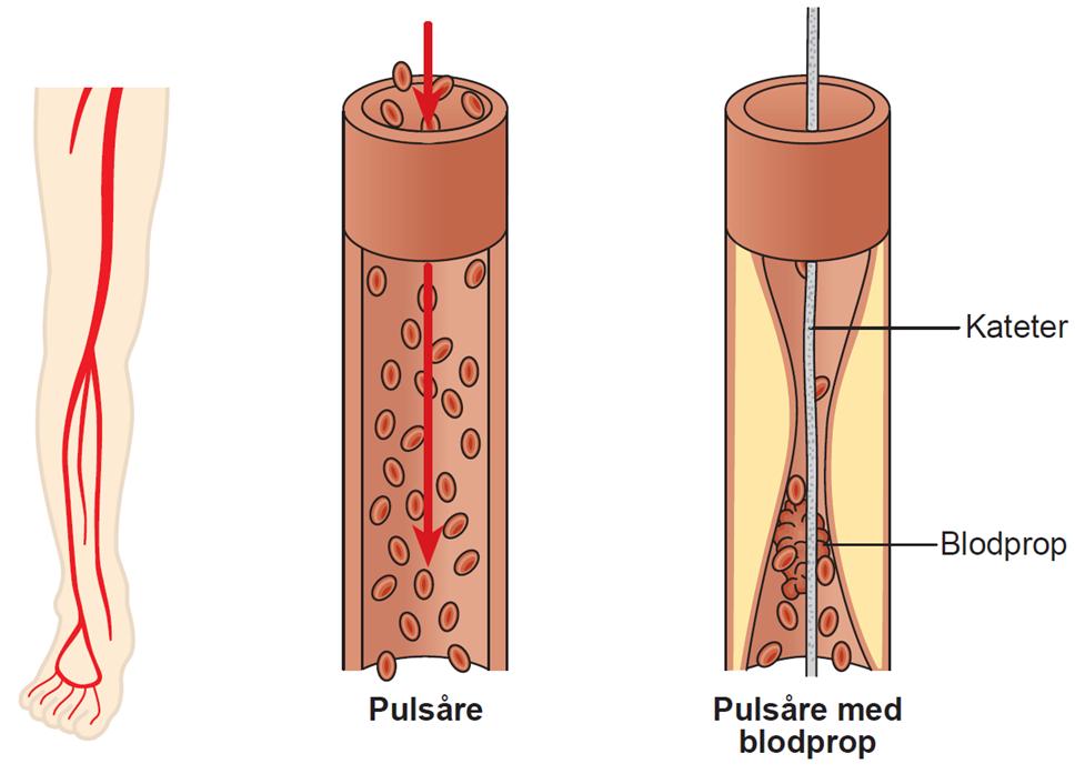 Illustration af en rask pulsåre og en pulsåre med blodprop