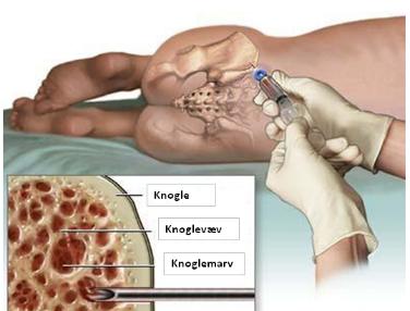 Sådan udtages vævsprøven af knoglemarven