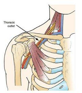 Tegning af nerve ved kravebenet