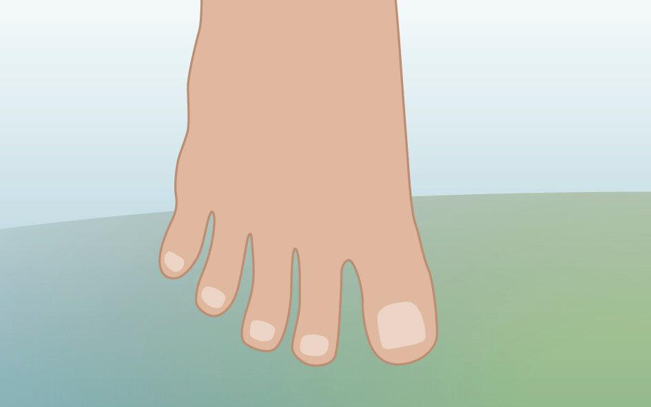 Illustration viser fod med spredte tæer.