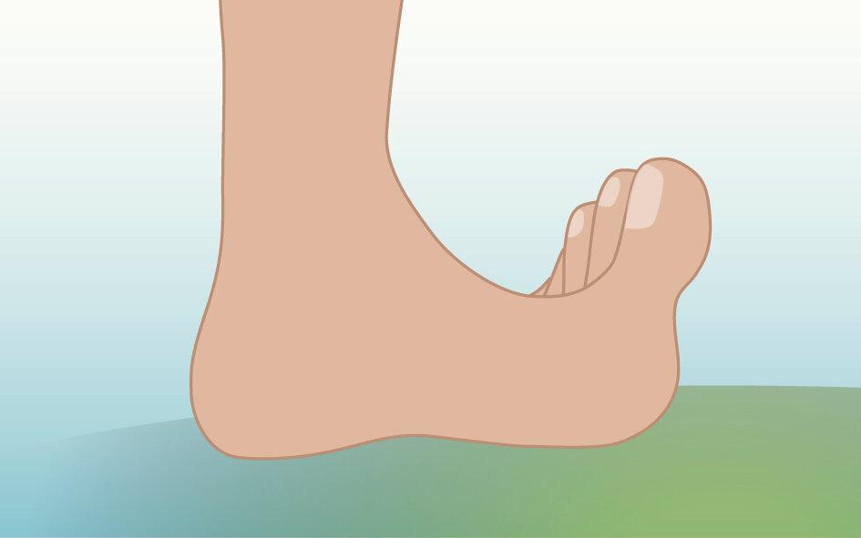 Illustration viser fod med opadpegende tæer.